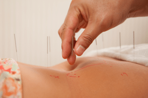 Acupuncture for Cancer Support
